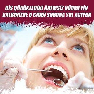 Diş çürüklerini önemsiz görmeyin kalbinizde o ciddi soruna yol açıyor