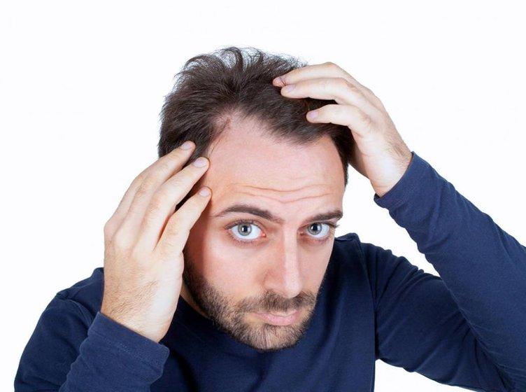 Saç dökülmesi sorunu için kesin çözüm…
