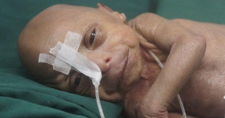 Bangladeş'de yaşlı bebek doğdu!