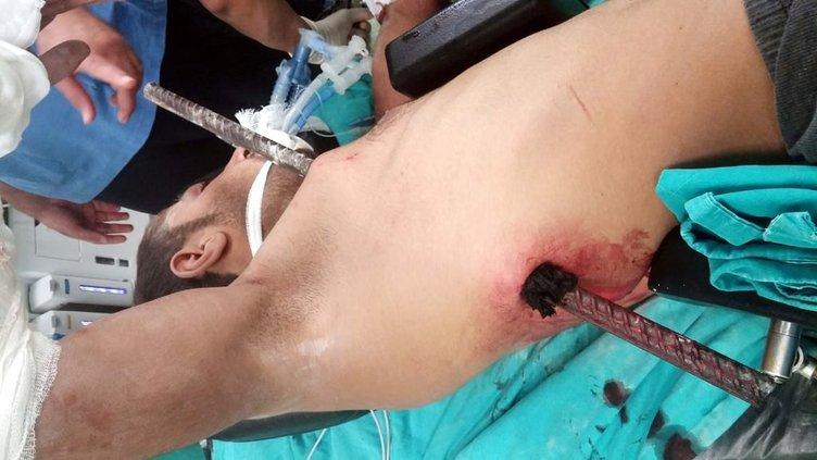 Göğsünden girip, sırtından çıkan demir ameliyatla çıkarıldı