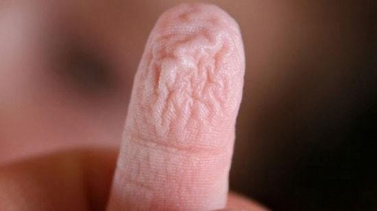 Parmakların suda buruşmasının gerçek nedeni