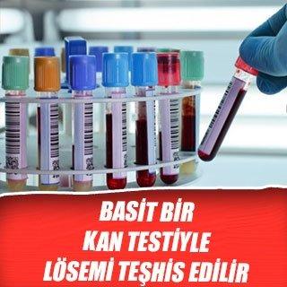 Basit bir kan testiyle lösemi teşhis edilir