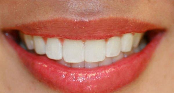 Diş sıkma alışkanlığı geceleri kendini gösteriyor