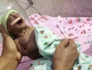 Hindistan'da hasta doğan bebeği anne ve babası terk etti
