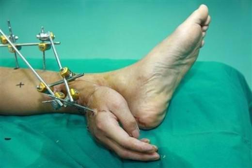 Çinli doktorlar kopan eli bacağa bağladı