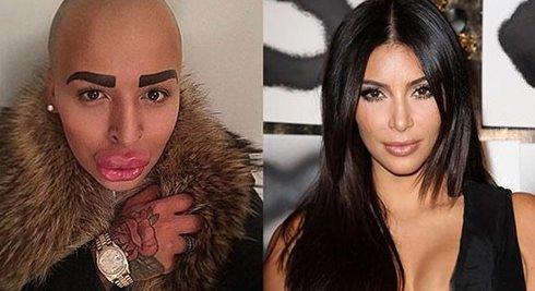 Kim Kardashian'a benzemeye çalışırken bu hale geldi
