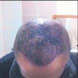 Hatalı saç ekimine yaralama davası
