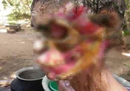 Et yiyen virüs kadının yüzünü yedi