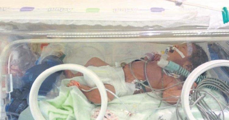 1 günlük bebeğe kalp pili takıldı