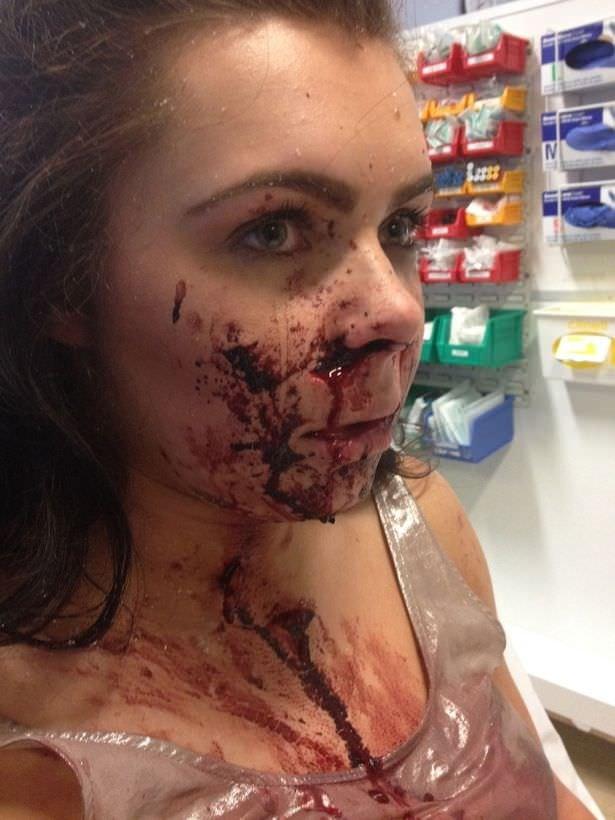 Aracında saldırıya uğrayan kadın tanınmayacak hale geldi