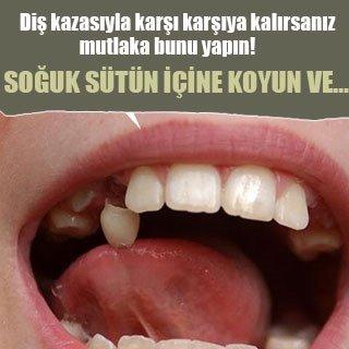 Diş kazasıyla karşı karşıya kalırsanız mutlaka bunu yapın!