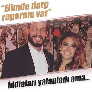 Atakan Arslan'ın eski sevgilisi Berna Demir: Elimde darp raporum var