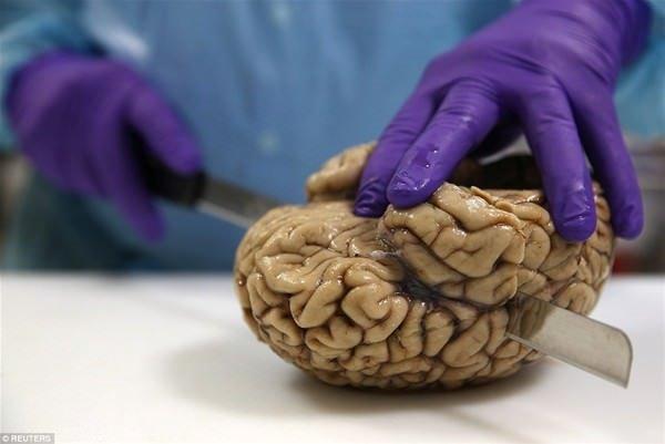 Burası bir beyin bankası!