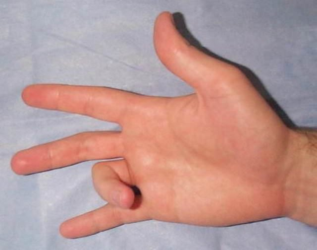 Parmakların çıtlamasının gerçek nedeni