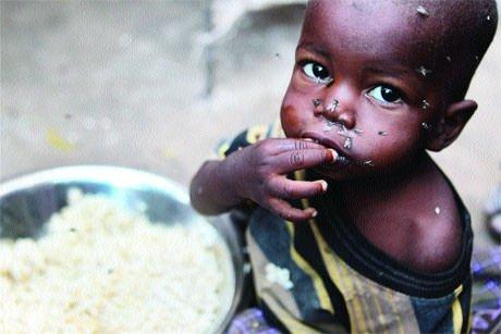 İşte açlığın esir aldığı 10 ülke...