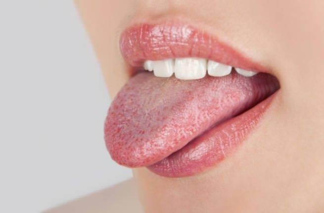 Diline bak hastalığını öğren