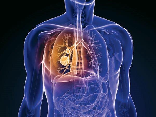 En sık rastlanan beş kanserden korunma yolları