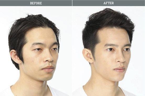 Estetiğin değiştirdiği yüzler