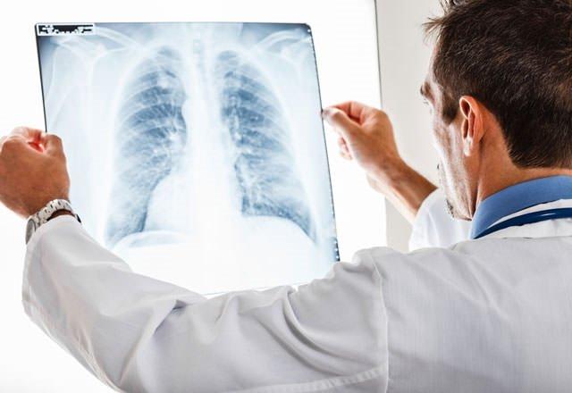 Çağın hastalığı kanser yanıbaşımızda!