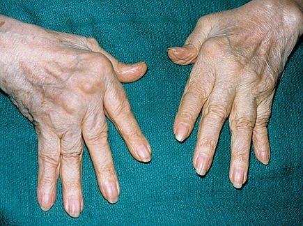 Romatoid artritin 5 önemli işareti!